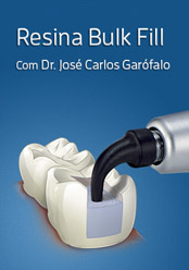 Hands On: Utilizando a técnica Bulk Fill