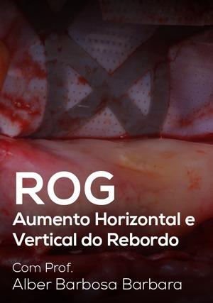 ROG - Aumento Horizontal e Vertical do Rebordo