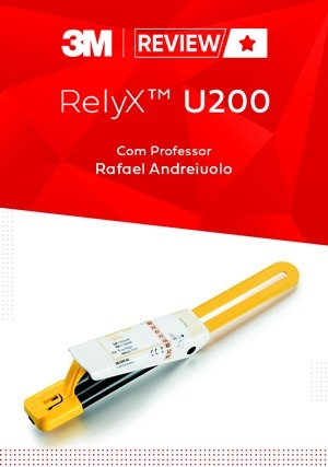 Review: RelyX U200