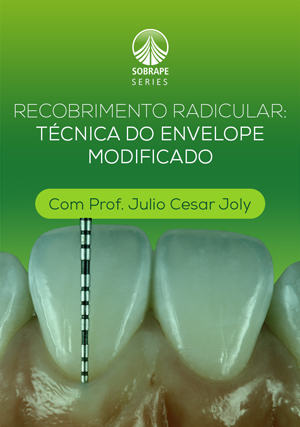 Recobrimento Radicular: Técnica do Envelope Modificado
