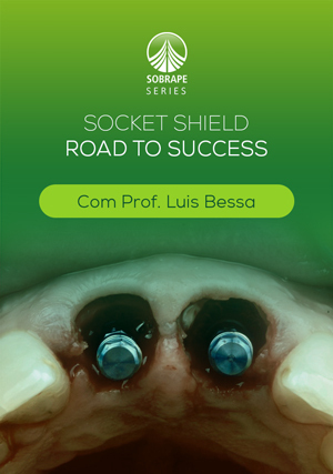 Socket Shield: Road to Success