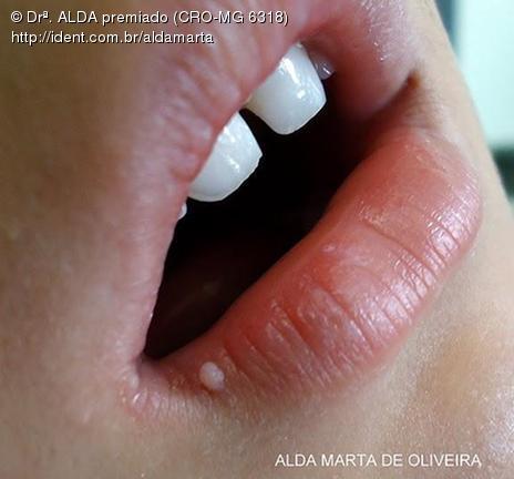 papiloma labial tratamento