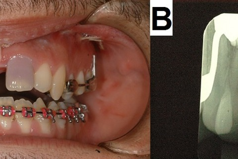 Photography and periapical radiography following SARME. (A) Front view showing darkening of the left maxillary central incisor. (B) Periapical radiographs of maxillary central incisors.