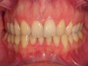 Intra Oral Frontal