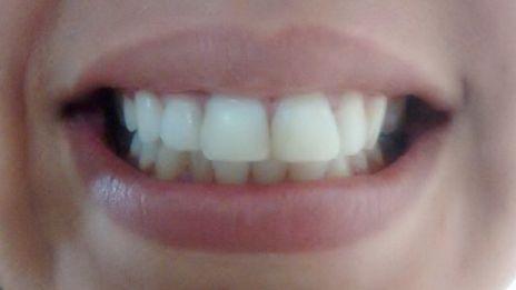 Clareamento De Dente Desvitalizado Caso Clinico Ident