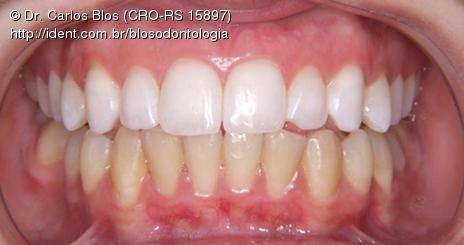 Clareamento Dental Caseiro Supervisionado Artigo Ident
