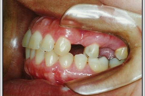 Clareamento Dental Pacientes Com Bruxismo Caso Clinico Ident