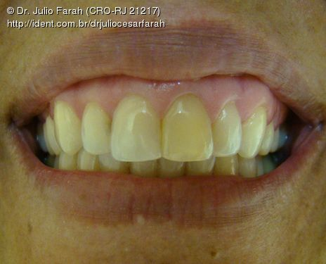 Clareamento Interno Para Dentes Desvitalizados Caso Clinico Ident