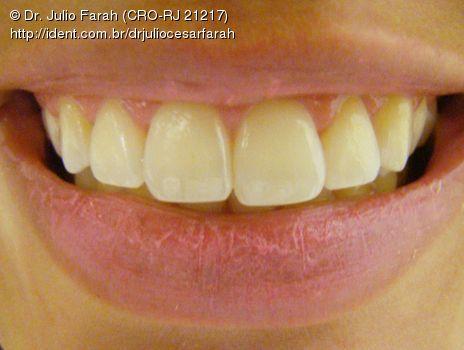 Manchas Brancas E Clareamento Dental Caseiro Caso Clinico Ident
