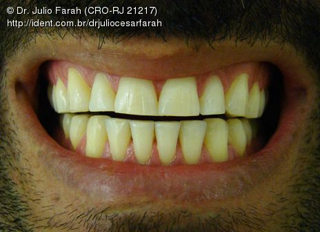Clareamento Dental (Pacientes com Bruxismo).