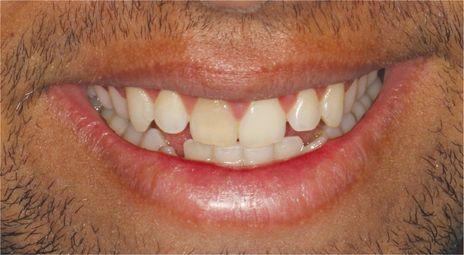 Clareamento Dental Profissional Em Dentes Despolpados Resultados