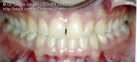 ortodontia bases para iniciao