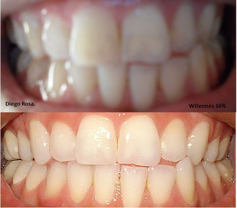 Clareamento Dental Caseiro Whiteness Perfect 16 4 Semanas Caso