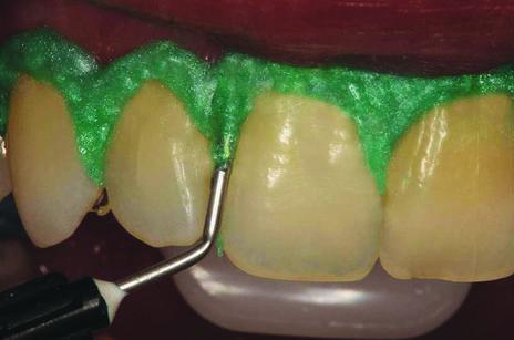 Clareamento De Consultorio Para Dentes Vitais E Nao Vitais