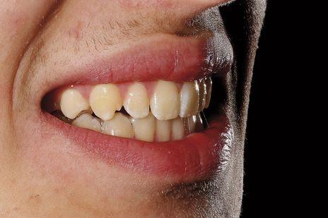 Clareamento Dental Caseiro Supervisionado Apos Tratamento