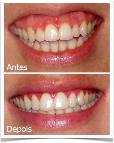 clareador dental dentista