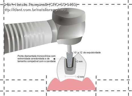 Protocolo para Reduzir Sensibilidade Pos-Operatoria em Restauracoes Indiretas com Compositos