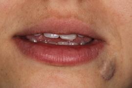 Facetas em Dentes Anteriores / Dente Escurecido
