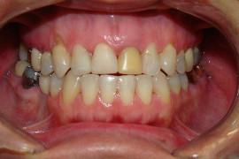 Cirurgias de Recobrimento de Raiz em 2 Etapas: 1ºetapa Enxerto Eptelizado; 2ºetapa Enxerto de Conjuntivo com Retalho Reposicionado Coronal.