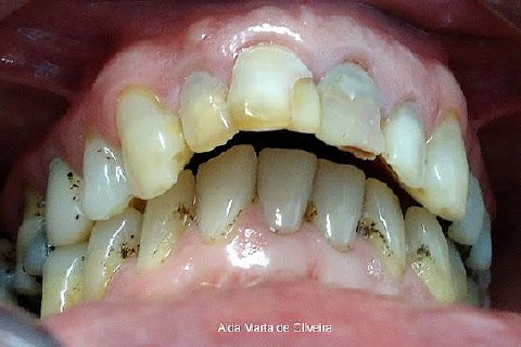 Candidoza bucală - cauze, diagnostic, tratamente medicale și naturiste