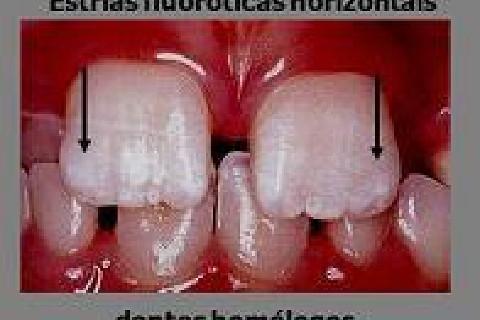 As manchas fluoroticas mais leves apresentam-se como estrias horizontais.