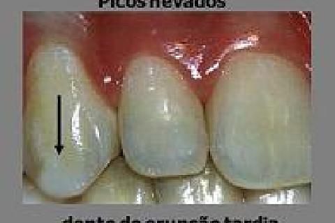 O aspecto de picos nevados é muito comum nas cúspides de dentes com erupção tardia.