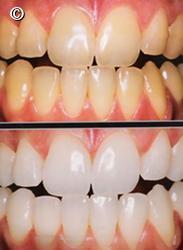 Clareamento Dental Duvidas Frequentes Artigo Ident