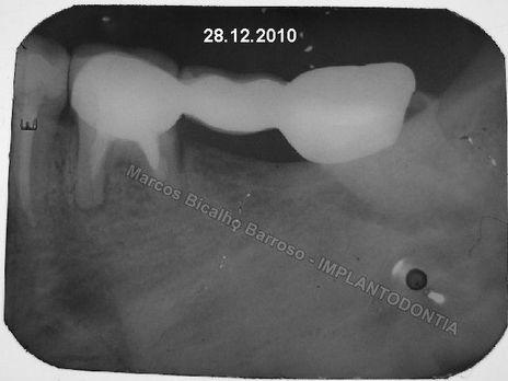 Implantes Posteriores Imediatos, com Instalação dos Cicatrizadores e Carga Imediata Após 10 Dias. um Risco.