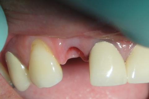 Implante feito já a seis meses e foi usado um Hexágono Interno de diametro 3,75mm e sem a necessidade de enxerto ósseo.
