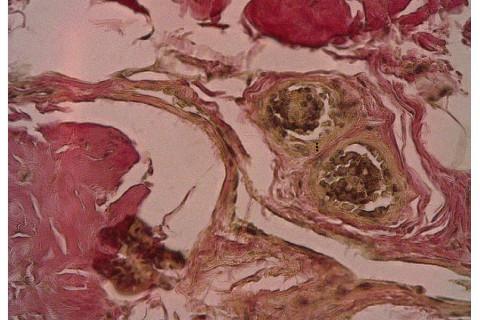 Exemplo de imagem capturada para realização de morfometria vascular. Língua (Verfoeff-van Gienson 40x)