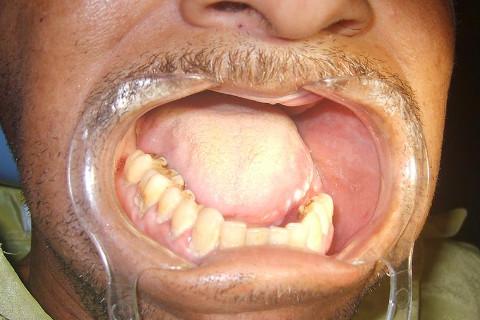 Estomatite nicotínica e péssima higiene oral. Note uma ausência de elementos dentais na maxila.