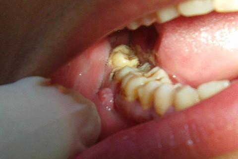 Edema intra-oral .Abertura máxima de boca!