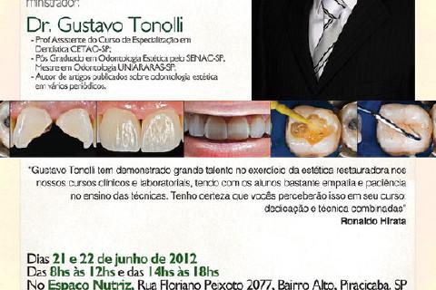 Curso de Imersão em Estética com Resinas Compostas - Anteriores e Posteriores - agora em Piracicaba- SP, dias 21 e 22 de junho.