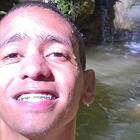 Carlos Ícaro Di (Estudante de Odontologia)