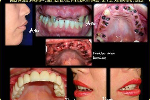 Protocolo sobre 6 implantes- carga imediata prévia - Reabilitação e mudança de vida