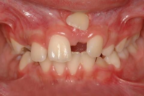 Classe II, Atresia de maxila, Erupção ectópica do dente 21. Tratamento: 1 Fase: Haas Multifunção + AEB. 2 Fase: Aparelho Fixo.