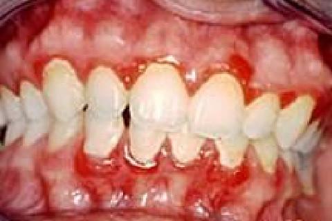 Os primeiros sinais de doença periodontal são percebidos quando o tecido gengival se apresenta inflamado, isto é, com sangramento e...