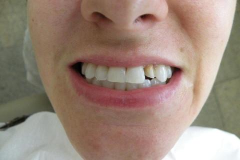 Após clareamento, restauração classe IV em resina composta no dente 21 e preparo para faceta no dente 22.