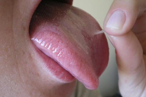 Escamação da mucosa bucal (ocorreu nas regiões lingual, palatina e mucosa jugal)