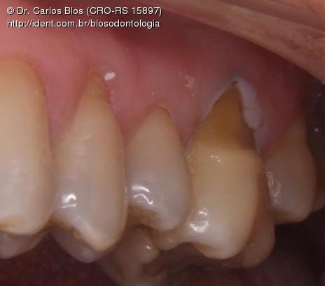 Preparo do dente. Regularização do esmalte cervical eliminando áreas retentivas. Jateamento com óxido de alumínio e hibridização...