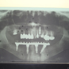 Dr. Gustavo Feresin de A. Fenerich (Implantodontista)