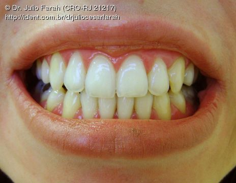 clareamento dental laser preço rj