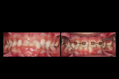 Tratamento da Classe III precoce, utilizando tração reversa e máscara facial, seguido de Arco Utilidade de Avanço de Ricketts.