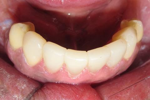 Aspecto dos incisivos e caninos inferiores com maior espessura na região lingual e vestibular com a finalidade de servir de reforço por aumento de espessura. A restauração dos pré-molares será realizada em uma próxima sessão.