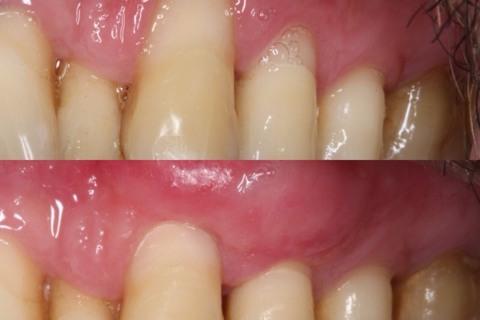 Recobrimento radicular com Cirurgia Plástica Periodontal.