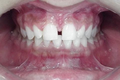 Caso Inicial. Diastema generoso. Paciente não quer nem pensar em ortodontia.