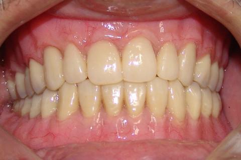 Clínica Odontológica M & M Dentalli - Dr. Maurício Spillere Santos - Foto Final 01