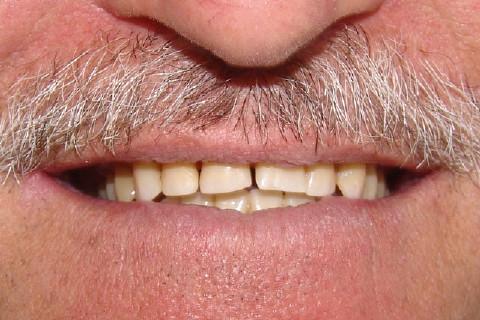 Clínica Odontológica M & M Dentalli - Dr. Maurício Spillere Santos - Foto Inicial 01