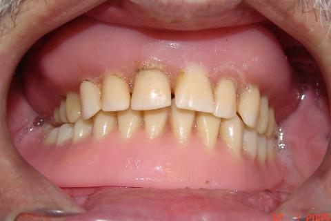 Clínica Odontológica M & M Dentalli - Dr. Maurício Spillere Santos - Foto Inicial 02