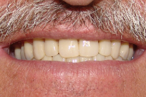 Clínica Odontológica M & M Dentalli - Dr. Maurício Spillere Santos - Foto Final 02
